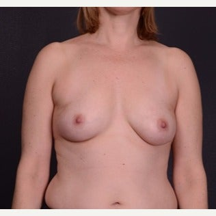 45-54 year old woman treated with Mentor Breast Implants before 2596019