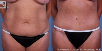 55-64 year old woman treated with Tummy Tuck before 3768656