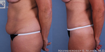 55-64 year old woman treated with Tummy Tuck after 3768656