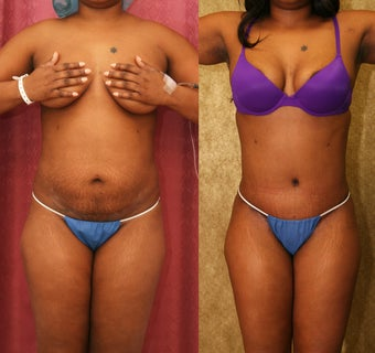 African American Tummy Tuck before 993785