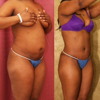 African American Tummy Tuck after 993785