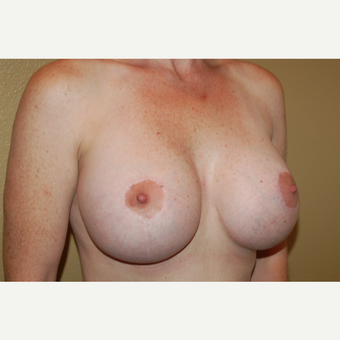 35-44 year old woman treated with Breast Implant Revision after 3798845