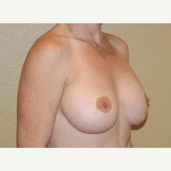 35-44 year old woman treated with Breast Implant Revision before 3798845
