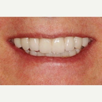 45-54 year old woman treated with All-on-4 Dental Implants after 2636742