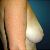 38 year old woman treated with Breast Lift before 3665943