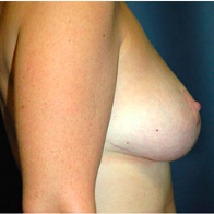 38 year old woman treated with Breast Lift after 3665943