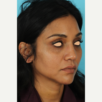 25-34 year old woman treated with Revision Rhinoplasty after 3691226