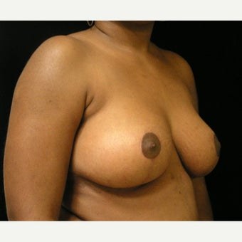 25-34 year old woman treated with Breast Reduction and liposuction of axillary folds 1717405