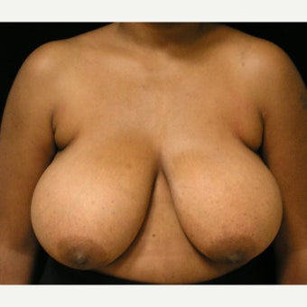 25-34 year old woman treated with Breast Reduction and liposuction of axillary folds before 1717405