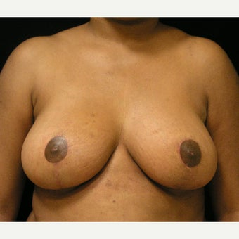 25-34 year old woman treated with Breast Reduction and liposuction of axillary folds after 1717405