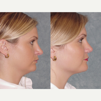 25-34 year old woman treated with Revision Rhinoplasty after 3224070