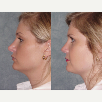 25-34 year old woman treated with Revision Rhinoplasty before 3224070