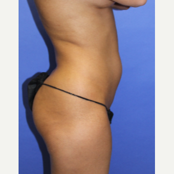 25-34 year old woman treated with Liposculpture before 3240643