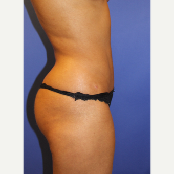 25-34 year old woman treated with Liposculpture after 3240643