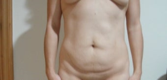 36   years treated   with   tummy tuck  and  liposuction before 1169675