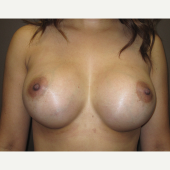 35-44 year old woman treated with Breast Augmentation after 3424542