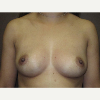 35-44 year old woman treated with Breast Augmentation before 3424542