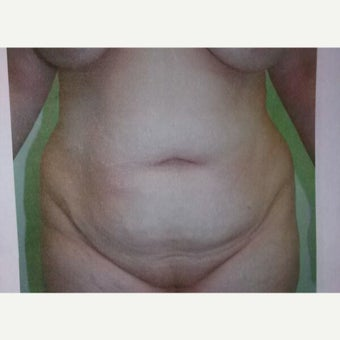45-54 year old woman treated with Tummy Tuck before 2615335