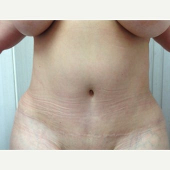 45-54 year old woman treated with Tummy Tuck after 2615335