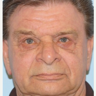 65-74 year old man treated with Ptosis Surgery after 3727884