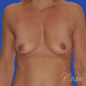 47 year old treated with a Donut Breast Lift and Implants before 3501301