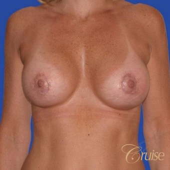 47 year old treated with a Donut Breast Lift and Implants after 3501301