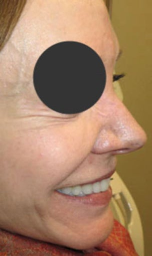 64-year-old before and after Botox for crow's feet after 1428614