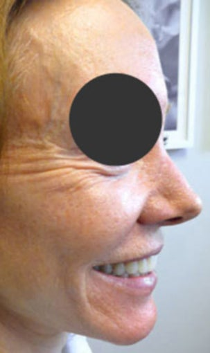 64-year-old before and after Botox for crow's feet before 1428614