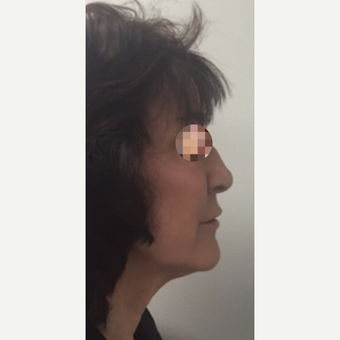 45-54 year old woman treated with Rhinoplasty before 3301841