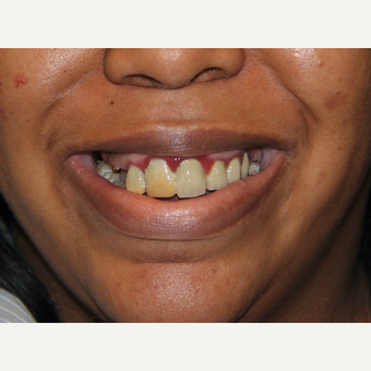 All-on-4 Dental Implants before 2380761