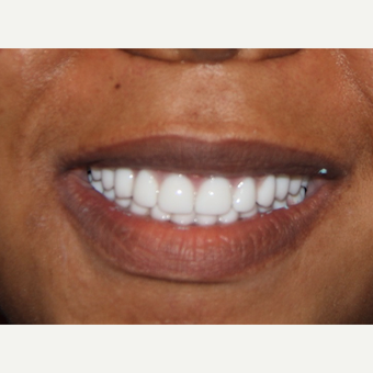 All-on-4 Dental Implants after 2380761