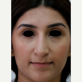 25-34 year old woman treated with Rhinoplasty after 3637853
