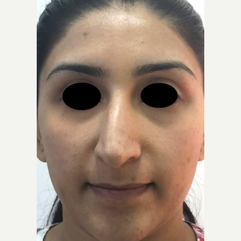 25-34 year old woman treated with Rhinoplasty before 3637853