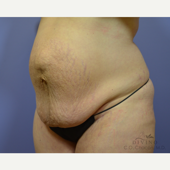 35-44 year old woman treated with Tummy Tuck before 3415700