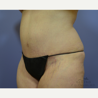 35-44 year old woman treated with Tummy Tuck after 3415700