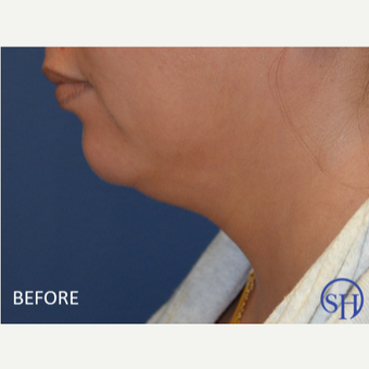 After 1 treatment Kybella before 2879265