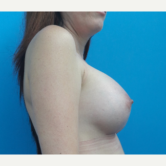 35-44 year old woman treated with Breast Augmentation after 3009436