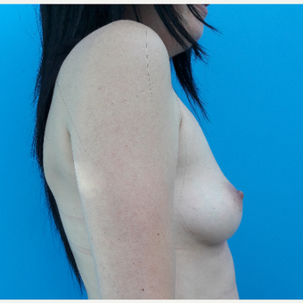 35-44 year old woman treated with Breast Augmentation before 3009436