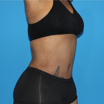 45-54 year old woman treated with Tummy Tuck after 3332967