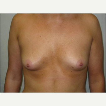 24 year old woman treated with Breast Augmentation before 3725832