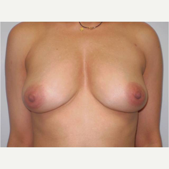 24 year old woman treated with Breast Augmentation after 3725832