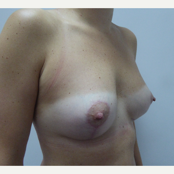 25-34 year old man treated with Breast Lift after 3428120