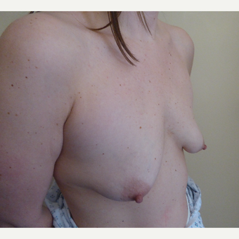 25-34 year old man treated with Breast Lift before 3428120