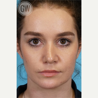 18-24 year old woman treated with Nose Surgery after 3473458