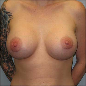 27 year old woman treated with Breast Augmentation after 3468224
