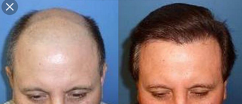 45-54 year old man treated with Hair Transplant before 3745473