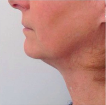45-54 year old woman treated with Kybella after 2463270