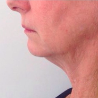 45-54 year old woman treated with Kybella before 2463270