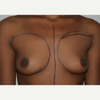 25-34 year old woman treated with Breast Augmentation before 3073394