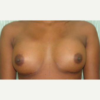 25-34 year old woman treated with Breast Augmentation after 3073394